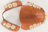Jim Crook's dentures